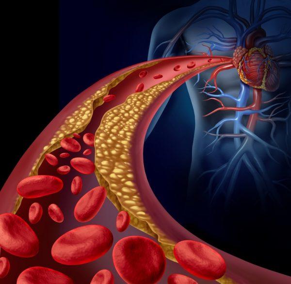Beneficios de la dieta cetogenica evita infartos de miocardio