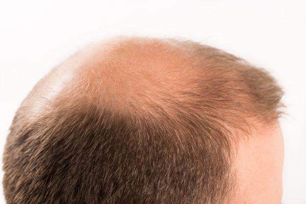 Para que sirve la argininia con fines medicos alopecia