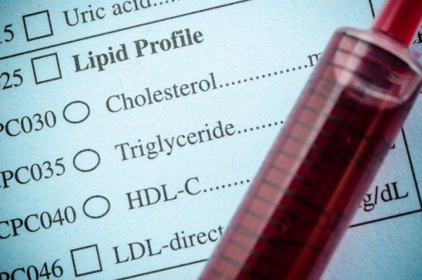 Analisis trigliceridos