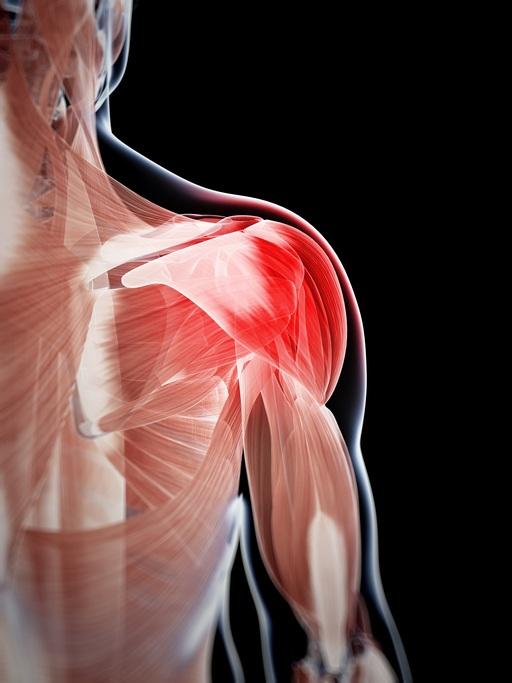 Dolores lesiones hombros