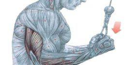 Extensiones de Tríceps en Polea Alta