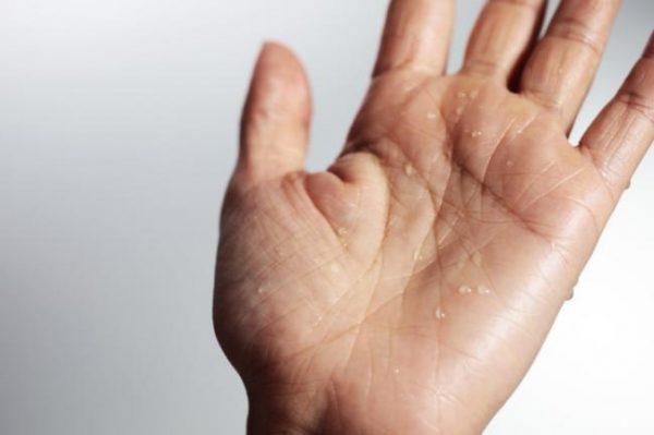 l-carnitina-para-adelgazar-y-quitar-la-grasa-hiperhidrosis