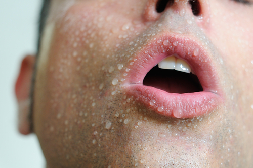 los-efectos-secundarios-de-la-l-carnitina-hiperhidrosis