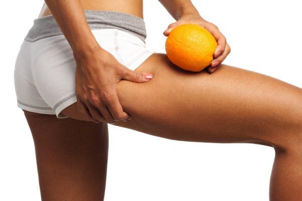 Piel naranja celulitis