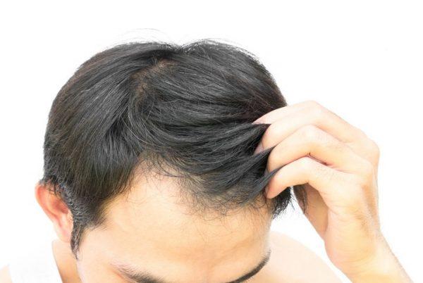 Propiedades y beneficios de la arginina crecimiento cabello